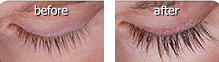 Serum eyelashes